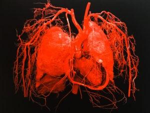 Illustration nº 1 :  Configuration des artères des organes thoraciques