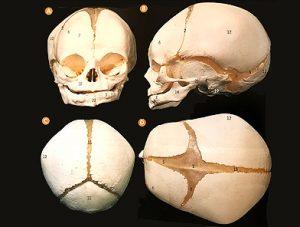 Illustration nº 22 : Crâne d'un fœtus à terme et ses fontanelles.Atlas clinique d'anatomie humaine.